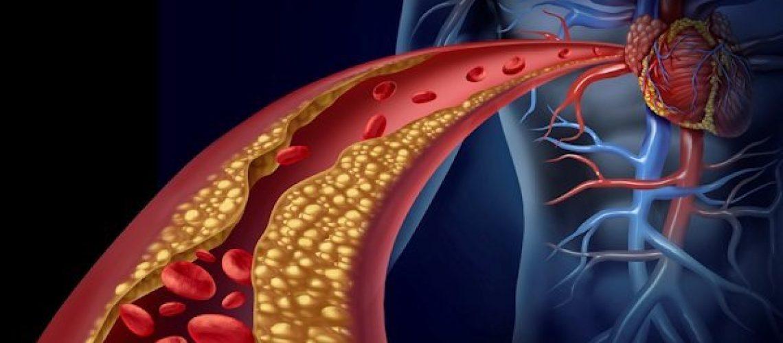 aterosclerosi foto